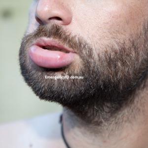 Anaphylaxis allergy reaction swollen lip Emergency ID allergy alerts